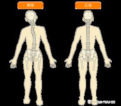 背骨の調整
