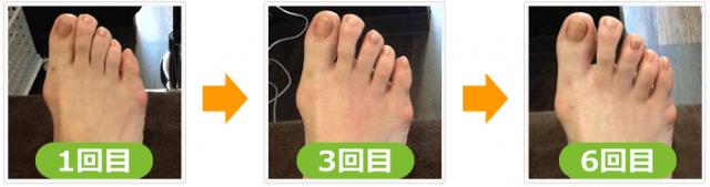 外反母趾の変化