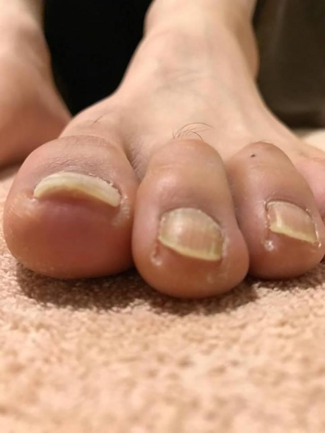 巻き爪左施術後2
